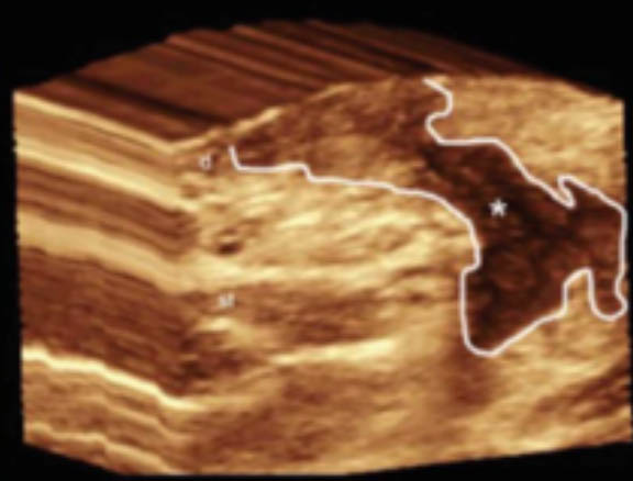 3D ultrasound hidradenitis suppurativa image demonstrates a sinus tract that affects the dermis and subcutaneous tissue