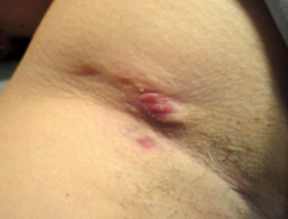 Clinical image of a hidradenitis suppurativa underarm case classified as Hurley stage II