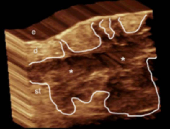 3D ultrasound hidradenitis suppurativa image demonstrates a hypoechoic fluid collection with echoes (debris) in the subcutaneous tissue and dermis, also connected to the base of the hair follicles