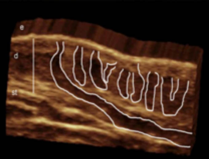 3D ultrasound hidradenitis suppurativa image show involvement of multiple hair follicles