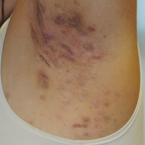 Hidradenitis suppurativa (HS) Hurley Stage II in the axilla region
