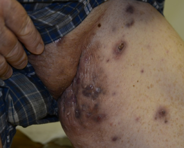 Hidradenitis suppurativa (HS) lesions on a patient's leg