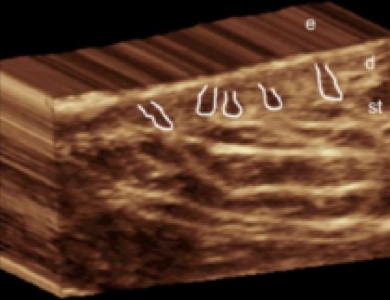 3D ultrasound hidradenitis suppurativa image demonstrates predominant enlargement of the base of the hair follicles in the deep portion of the dermis